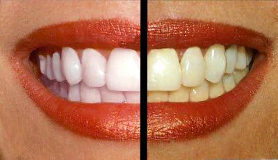 آموزش ترفند سفید کردن دندان ها در فتوشاپ